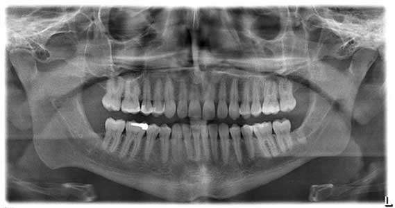 1534665990_x-rays.jpg